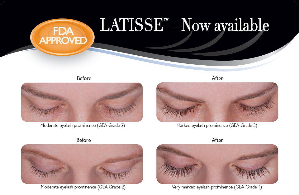 Khan Eyelid Facial Plastic Surgery Latisse Eyelash Enhancement