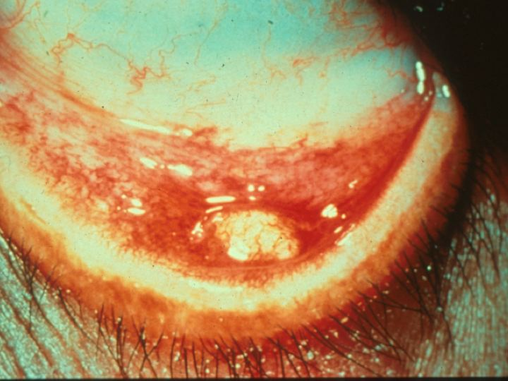 Khan Eyelid & Facial Plastic Surgery - Chalazion & Styes of